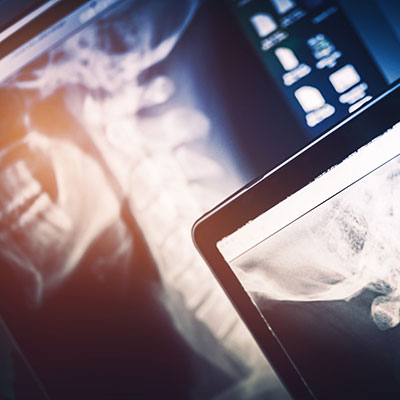 Digital imaging and x-rays at Inspire Chiropractic